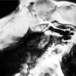 SaffronKeira - A New Life (Denovali)